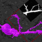 Workshop Announcement: Two-day Workshop in Correlative Light and Electron Microscopy (CLEM)