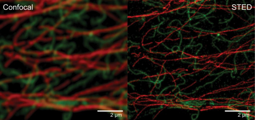 Superresolution STED microscopy allows to resolve fine structures that are invisble in conventional microscopy images. Conventional (Confocal) and STED microscopy image of cytoskeleton elements in mammalian cells. The tubulin cytoskeleton (red) was labelled with Abberior STAR635P and the vimentin cytoskeleton (green) was labeled with Abberior STAR 580. Shown is RAW DATA.